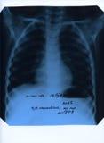 Röntgenstrahlfotographie des Kastens Stockfotos