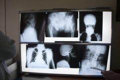 Röntgenstrahlfotos Stockbilder