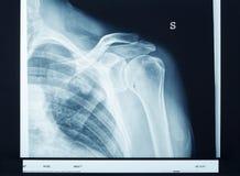 Röntgenstrahlschulter Stockbild