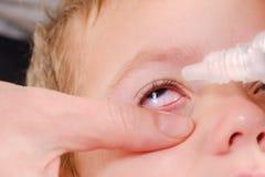 Rött allergiskt för för ögonbarnallergi och bindhinneinflammation, barndom royaltyfria bilder