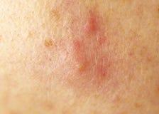 Rötung von der Akne auf der Haut, Backe, Makro, Hirsekorn lizenzfreies stockbild