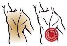 Rückenmuskel-Schmerz lizenzfreie abbildung