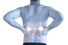 Rückenschmerzen Stockbild