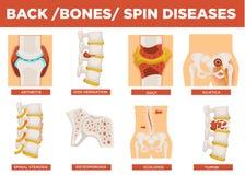 Rückseite, Knochen und menschlicher Drehbeschleunigungskrankheitserklärungsvektor lizenzfreie abbildung