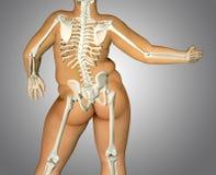 Rückseiten-Körperanatomie des Fettes 3d mit dem Skelett Lizenzfreies Stockbild