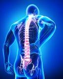 Hintere Ansicht von Anatomie der männlichen Rückenschmerzen im Blau Lizenzfreie Stockfotos