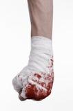 Rüttelte seine blutige Hand in einem Verband, blutiger Verband, Kampfclub, Straßenkampf, blutiges Thema, der weiße Hintergrund, l Lizenzfreie Stockfotos