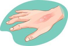 Ręka oparzenie ilustracja wektor