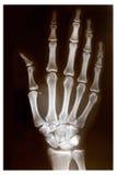 ręka ray x Zdjęcie Stock