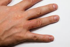 Ręki dermatitis Ręki egzema obrazy royalty free