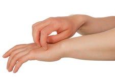 Ręki drapa skórę zdjęcie stock