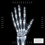 ręki medyczny fotografii promień x royalty ilustracja