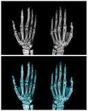 Ręki promieniowania rentgenowskiego kolekcja obrazy stock