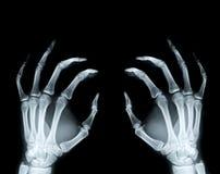 Ręki Promieniowanie rentgenowskie fotografia stock