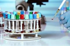 Ręka doktorski pipetting badanie krwi w obruszeniu i stojaku krew s Zdjęcia Stock