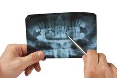 ręka trzyma radiograph Fotografia Royalty Free