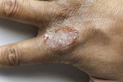 R?ka Z Atopic Dermatitis egzemy ?uszczyc? Vulgaris obrazy stock
