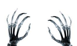 Ręki promieniowania rentgenowskiego rphotograph fotografia royalty free