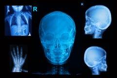 Raccolta dei raggi x dei bambini Immagini Stock