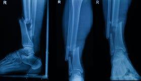 Raccolta dei raggi x umani che mostrano frattura di giusta gamba Fotografia Stock
