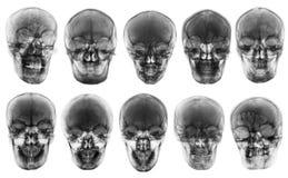Raccolta del cranio asiatico Front View Fondo isolato Immagine Stock