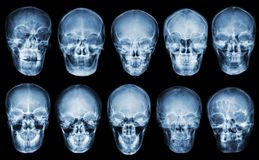Raccolta del cranio asiatico Front View Fondo isolato Immagini Stock Libere da Diritti