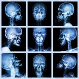 Raccolta del cranio asiatico (gente tailandese) Immagine Stock