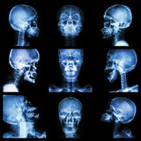 Raccolta del cranio asiatico (gente tailandese) Immagine Stock Libera da Diritti