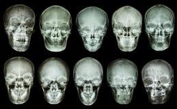Raccolta del cranio asiatico (vista anteriore) (gente tailandese) Immagini Stock Libere da Diritti