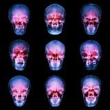 Raccolta del cranio dell'asiatico Immagini Stock Libere da Diritti
