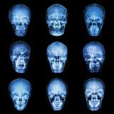 Raccolta del cranio dell'asiatico Immagine Stock