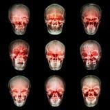 Raccolta del cranio dell'asiatico Fotografie Stock