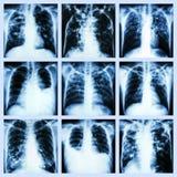 Raccolta dell'affezione polmonare (tubercolosi polmonare, versamento pleurico, bronchiettasia) fotografia stock