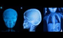 Raccolta dell'immagine dei raggi x dei bambini Immagini Stock