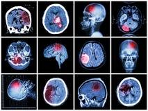 Raccolta della malattia di cervello Immagini Stock