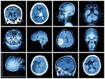 Raccolta della malattia di cervello Fotografia Stock
