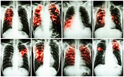 Raccolta di tubercolosi polmonare Esame radiografico del torace: mostri l'infiltrazione irregolare, l'infiltrazione interstiziale fotografie stock libere da diritti