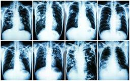 Raccolta di tubercolosi polmonare Esame radiografico del torace: mostri l'infiltrazione irregolare, l'infiltrazione interstiziale fotografia stock libera da diritti