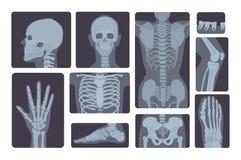 Raccolta realistica dei colpi dei raggi x Mano, gamba, cranio, piede, petto, denti, spina dorsale ed altra del corpo umano Fotografia Stock