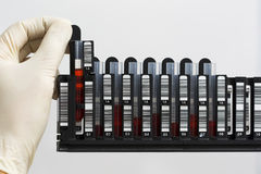Rack with blood samples. Technician put the samples into the rack for automatic nucleic acids extraction Royalty Free Stock Images
