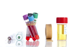 Rack with several tubes blood , plates petri and the background urine samples in the laboratory Stock Photo
