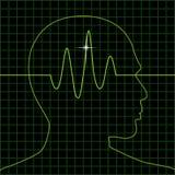 Radar-Gehirn Stockfotos