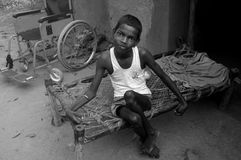 Radiated childhood. He is a physically handicapped son of UCIL (Uranium Corporation of India Limited) mineworker at his house in Jaduguda, India Royalty Free Stock Photo