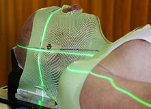 Radiation Therapy. Male patient wearing an alignment mask and undergoing radiation therapy stock image