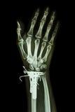 Radio distal de la fractura (el hueso del antebrazo) imagenes de archivo
