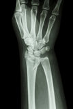 Radio distal de la fractura (el hueso del antebrazo) fotografía de archivo libre de regalías