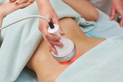 Radio frequency skin tightening machine. Belly of a woman, cosmetology royalty free stock photo