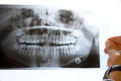Radiografía Foto de archivo
