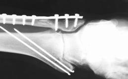 Radiografía. imágenes de archivo libres de regalías