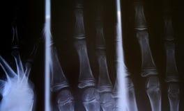 Radiografía Imagenes de archivo